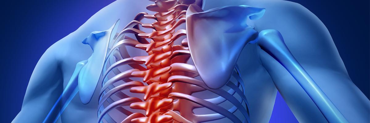 Was ist Osteochondrose?